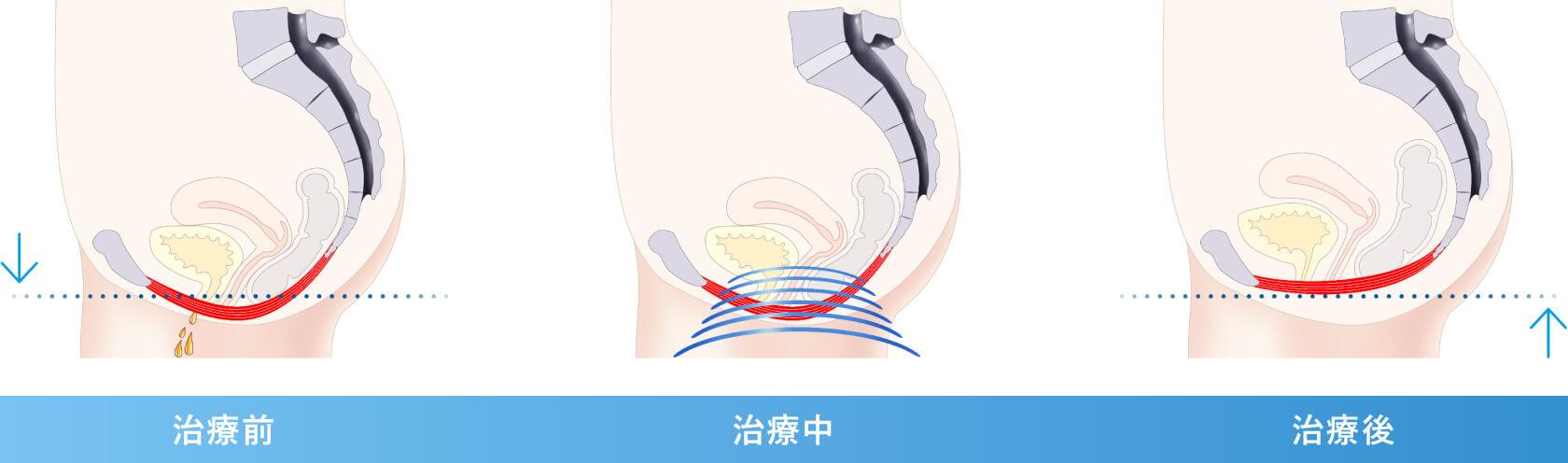 骨盤底筋における変化